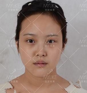 TianYY术前图片