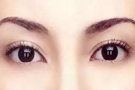 北京割双眼皮术后会留疤吗