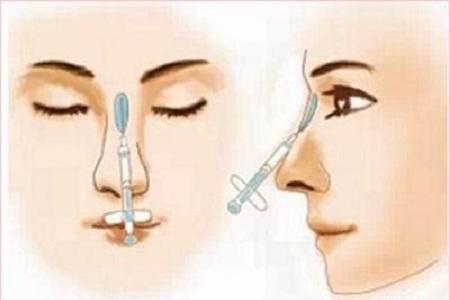 北京做假体隆鼻能保持多久