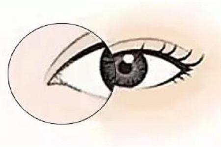 北京做开眼角手术前注意哪些事项