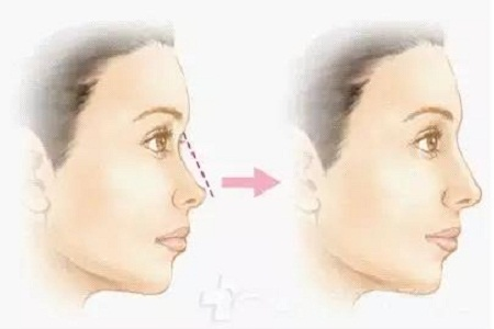 玻尿酸注射隆鼻