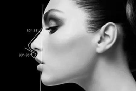 假體隆鼻失敗原因是什么
