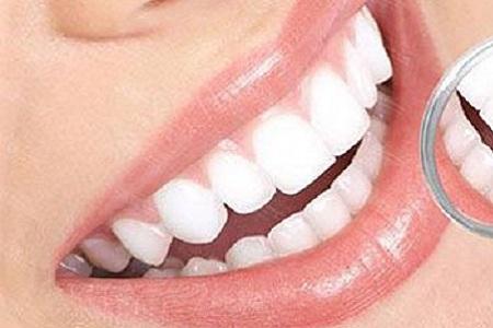 北京做冷光美白牙齿能保持多久