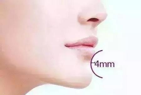 下頜角太寬應該怎么辦
