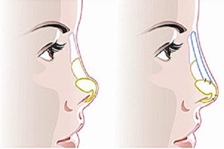 手术性隆鼻