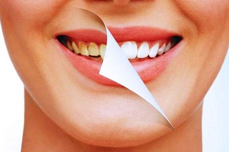 做牙齿矫正多大年龄效果比较好
