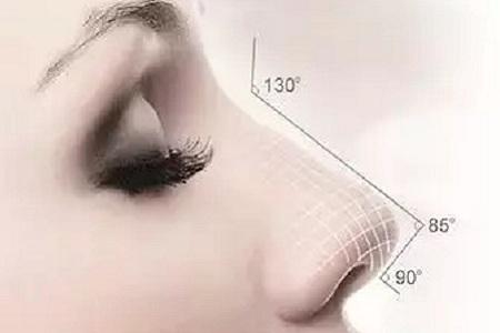 膨体隆鼻有哪些优势