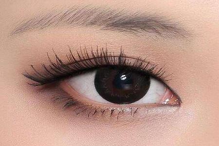 北京做雙眼皮失敗有哪些修復方法