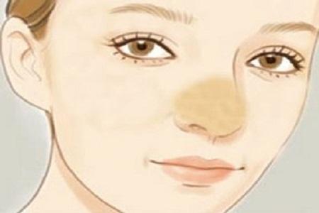 肋软骨隆鼻