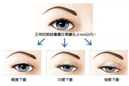 北京做上瞼下垂矯正費用多少