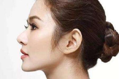 北京做假体隆鼻后注意方面有哪些