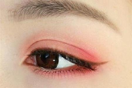 北京做雙眼皮失敗什么時候修復