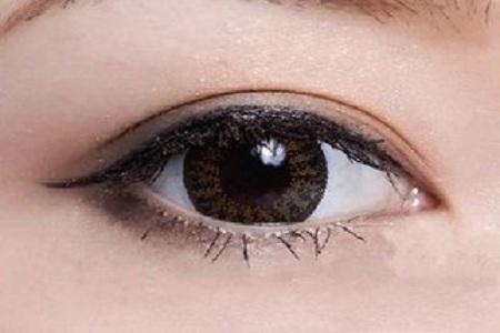 北京做雙眼皮失敗有哪些修復的方法