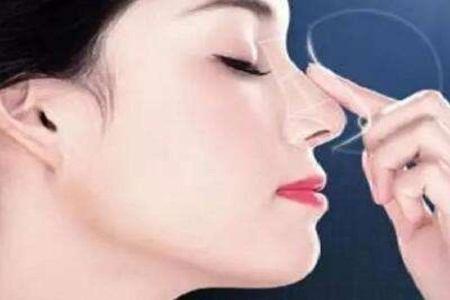 北京做隆鼻術后能墊下巴嗎