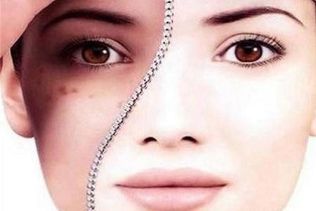 北京皮肤美白有哪些方法