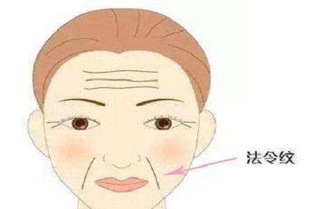 北京玻尿酸法令纹的消除好不好