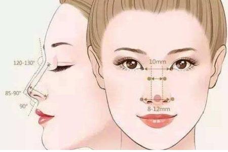 北京線雕鼻子能保持多久